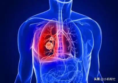 三伏天治疗这些疾病,事半功倍 王海峰,呼吸道疾病,附属医院,三伏天,治疗 第1张图片